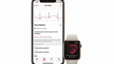Viktig uppdatering till Apple Watch